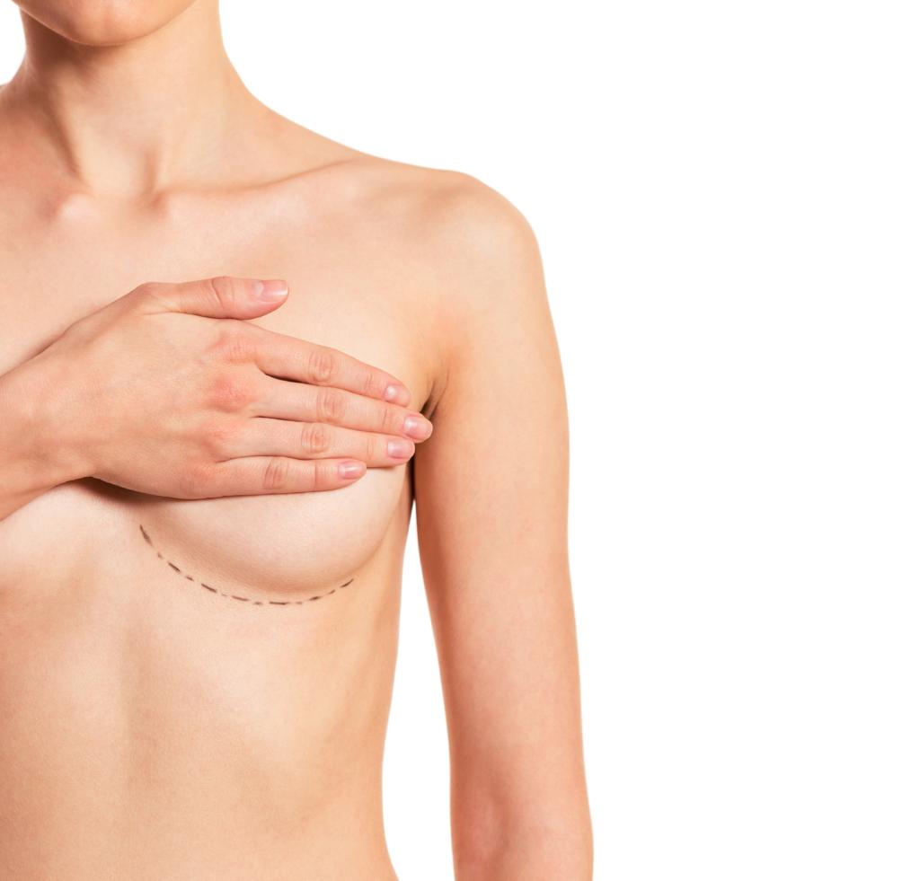 Augmentarea mamară – la ce să te aștepți după operație