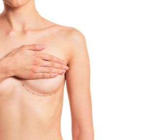 Augmentare mamară